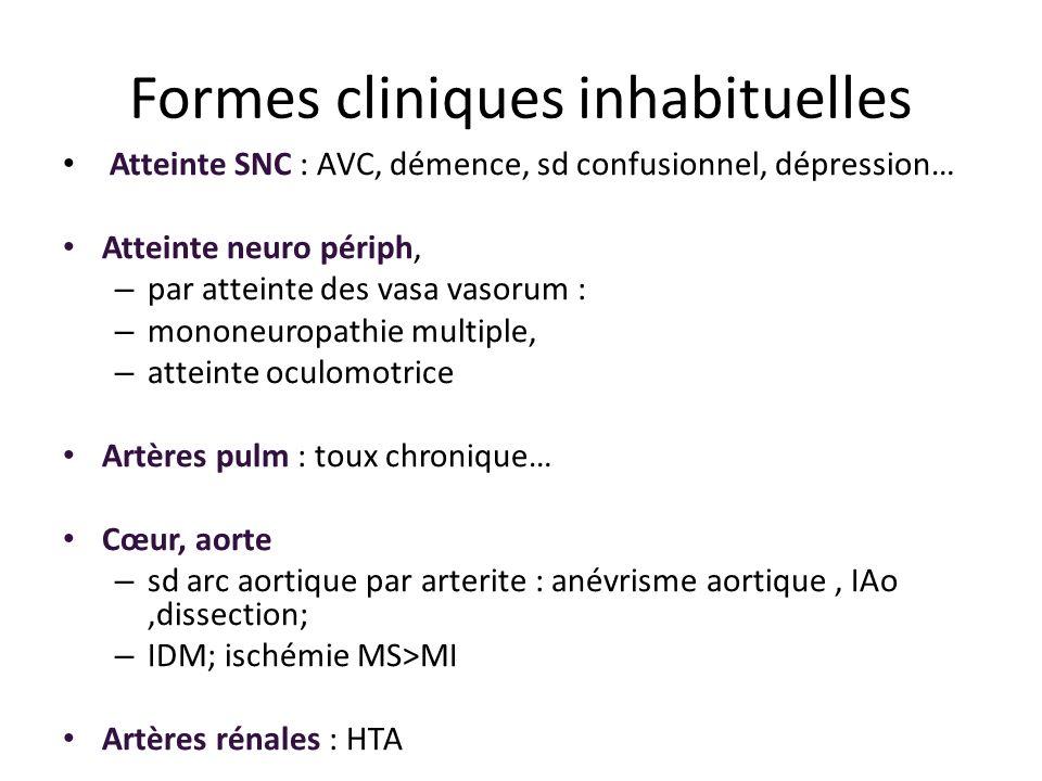 Formes cliniques inhabituelles