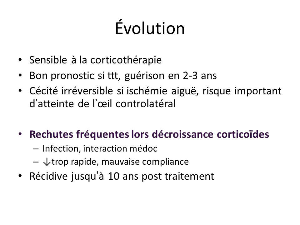 Évolution Sensible à la corticothérapie