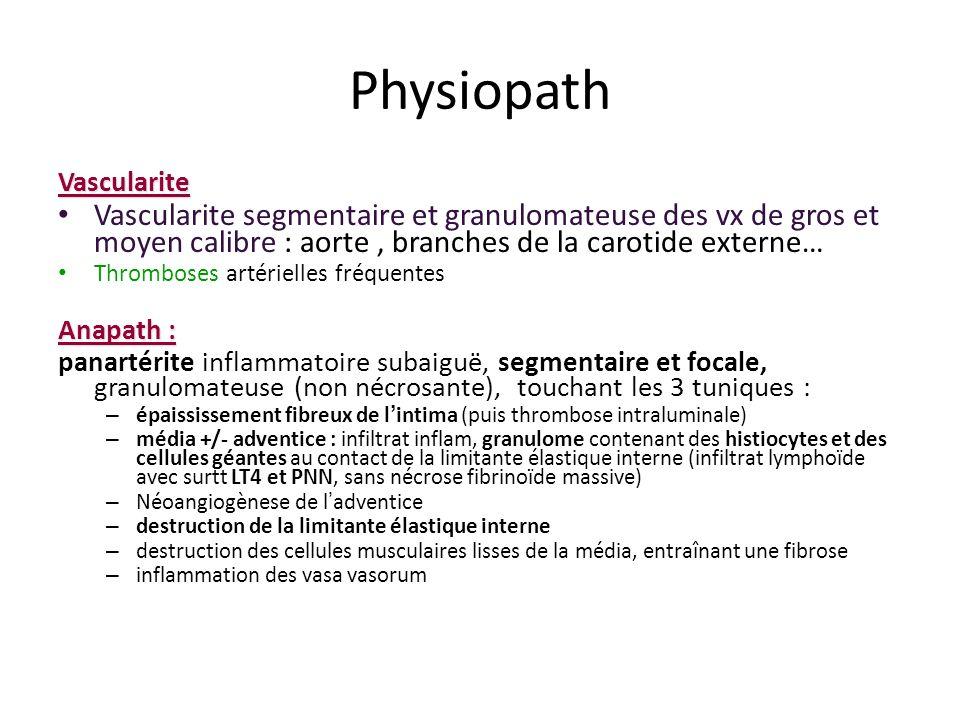 Physiopath Vascularite. Vascularite segmentaire et granulomateuse des vx de gros et moyen calibre : aorte , branches de la carotide externe…