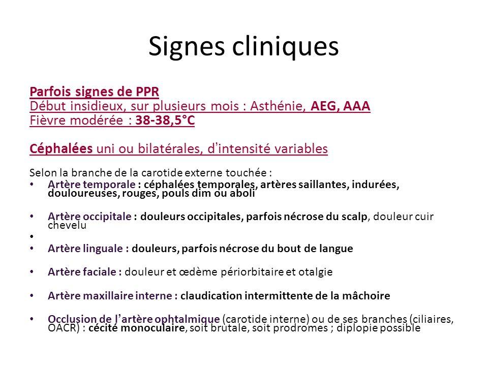 Signes cliniques Parfois signes de PPR