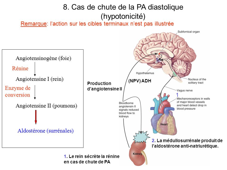 8. Cas de chute de la PA diastolique (hypotonicité)