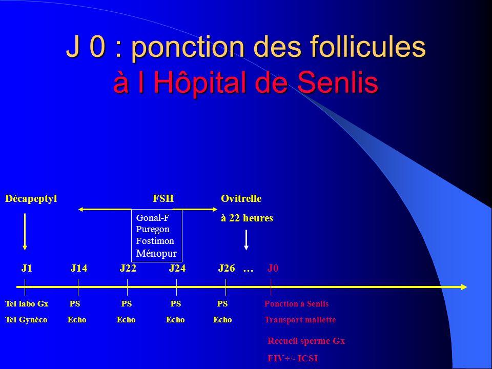 J 0 : ponction des follicules à l Hôpital de Senlis