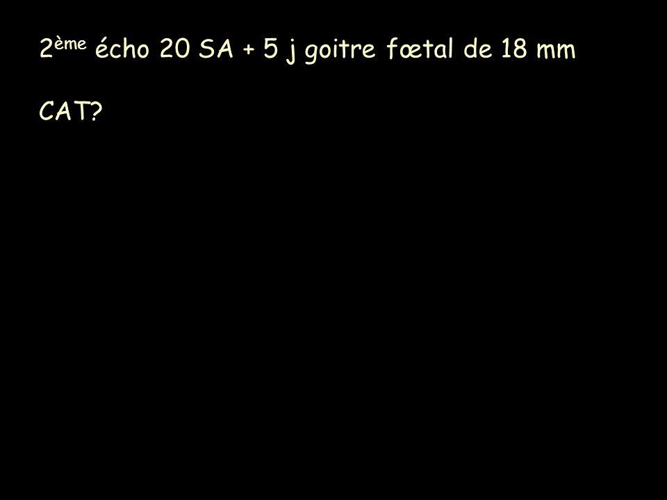 2ème écho 20 SA + 5 j goitre fœtal de 18 mm