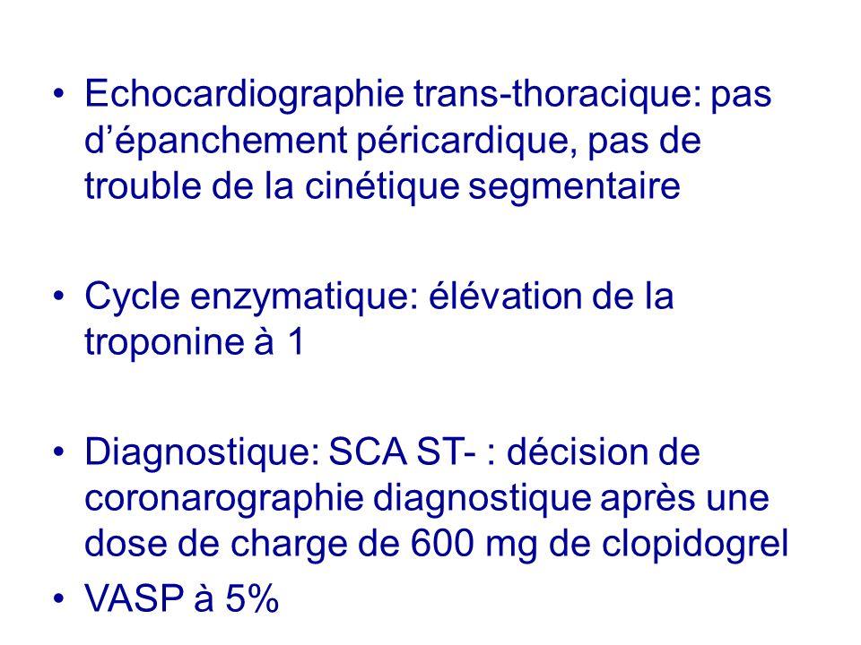 Echocardiographie trans-thoracique: pas d'épanchement péricardique, pas de trouble de la cinétique segmentaire