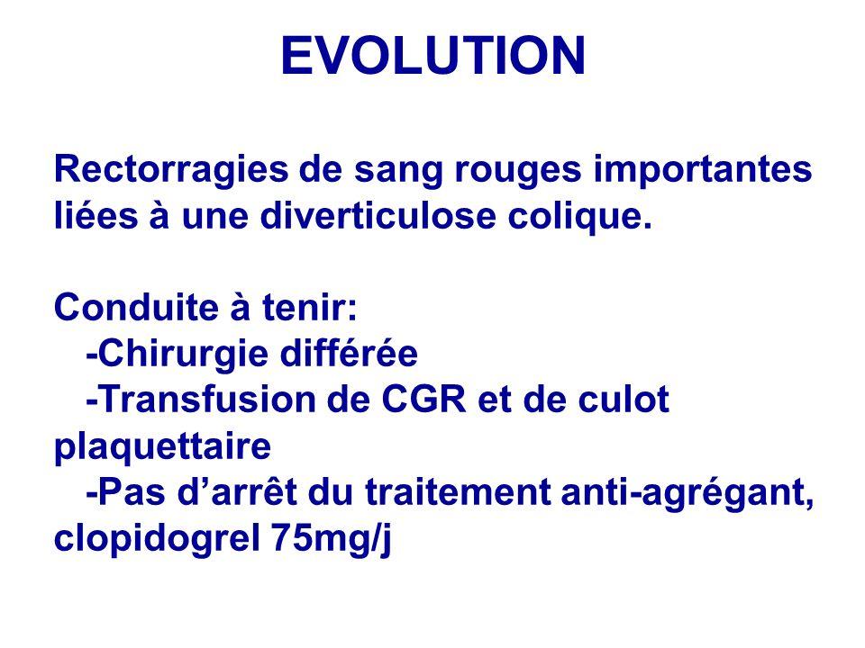 EVOLUTION Rectorragies de sang rouges importantes liées à une diverticulose colique. Conduite à tenir: