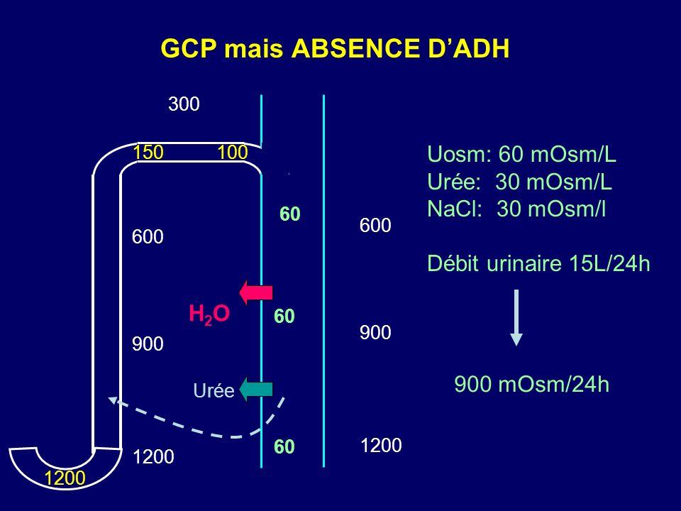 GCP mais ABSENCE D'ADH Uosm: 60 mOsm/L Urée: 30 mOsm/L NaCl: 30 mOsm/l