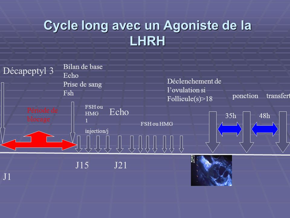 Cycle long avec un Agoniste de la LHRH