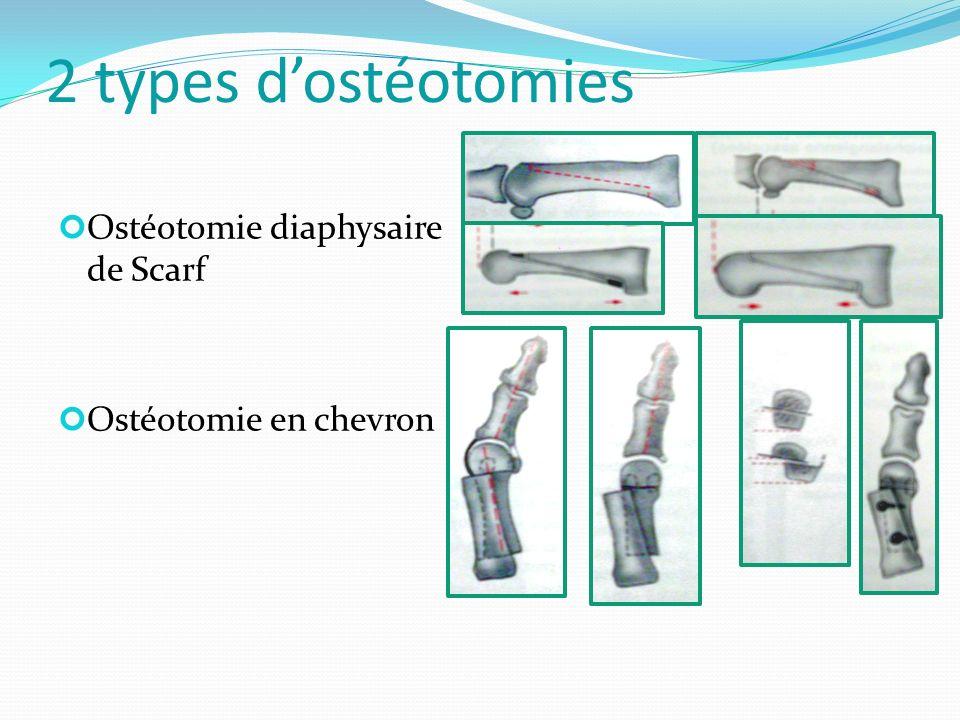 2 types d'ostéotomies Ostéotomie diaphysaire de Scarf