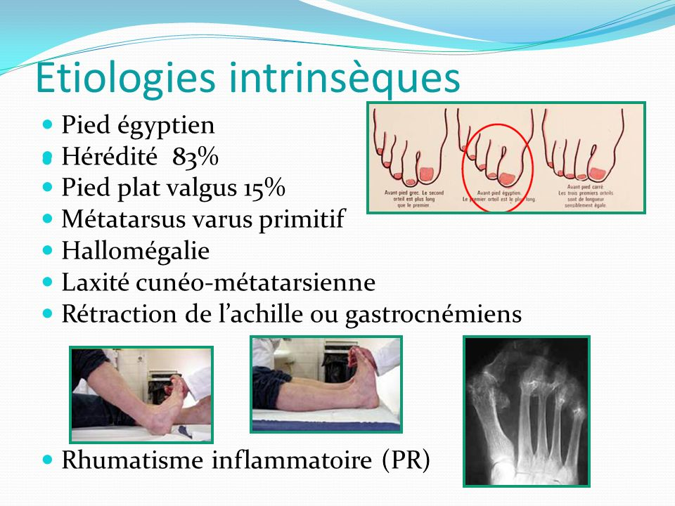 Etiologies intrinsèques
