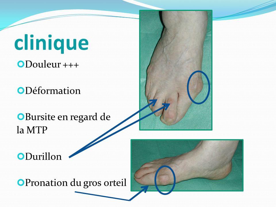 clinique Douleur +++ Déformation Bursite en regard de la MTP Durillon