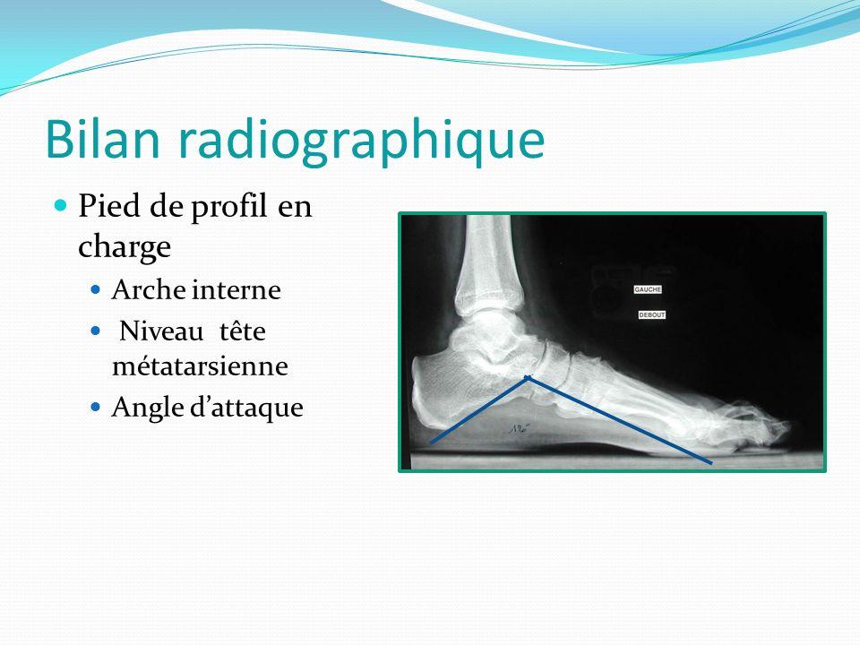 Bilan radiographique Pied de profil en charge Arche interne