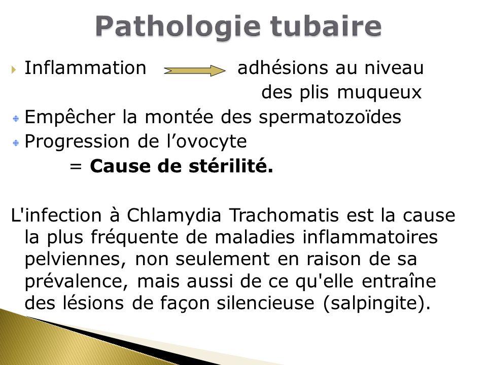 Pathologie tubaire Inflammation adhésions au niveau des plis muqueux