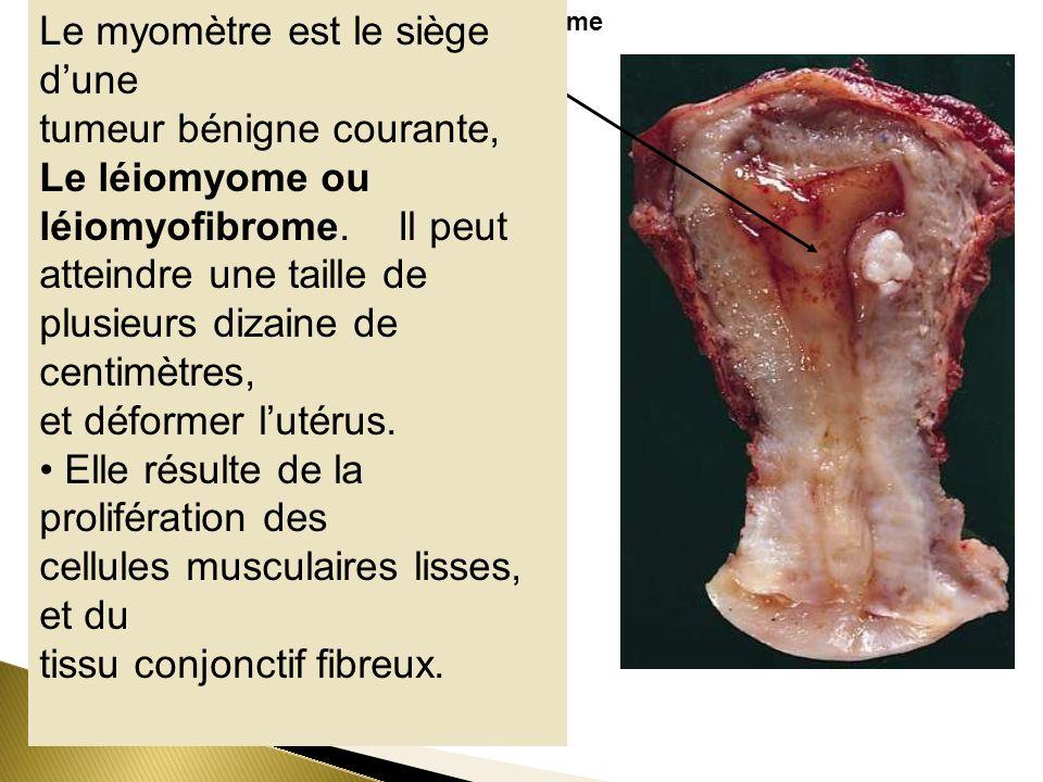 Le myomètre est le siège d'une tumeur bénigne courante,