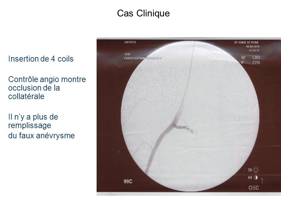 Cas Clinique Insertion de 4 coils