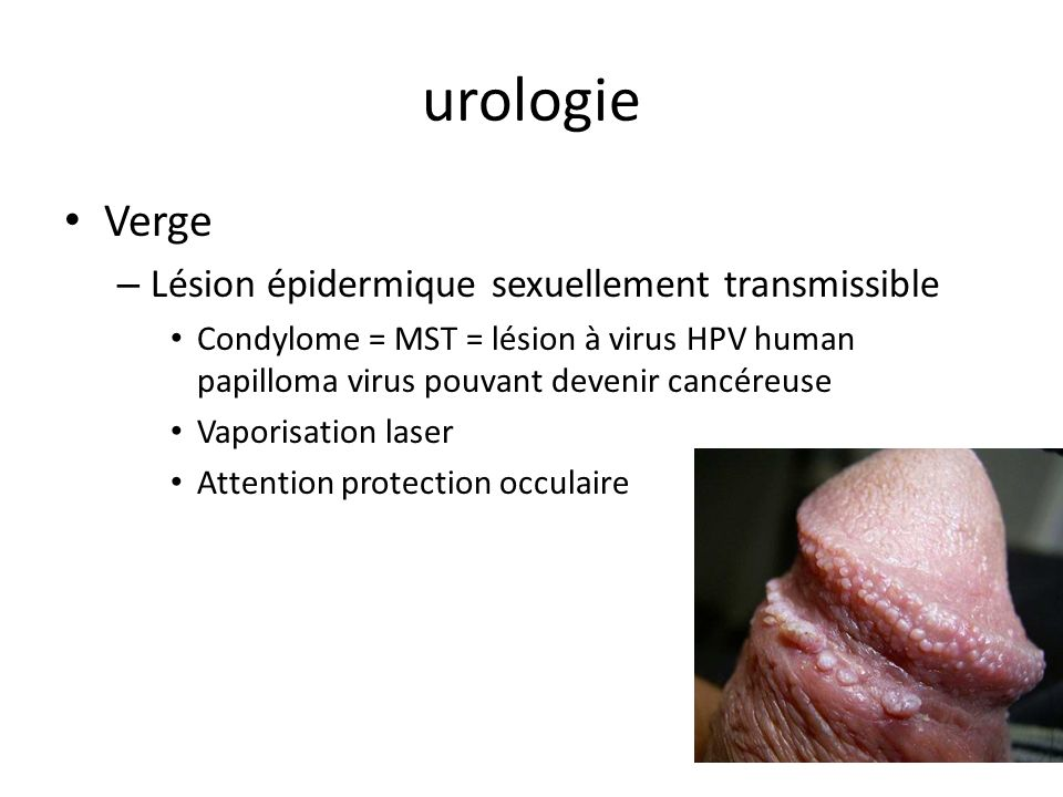 urologie Verge Lésion épidermique sexuellement transmissible