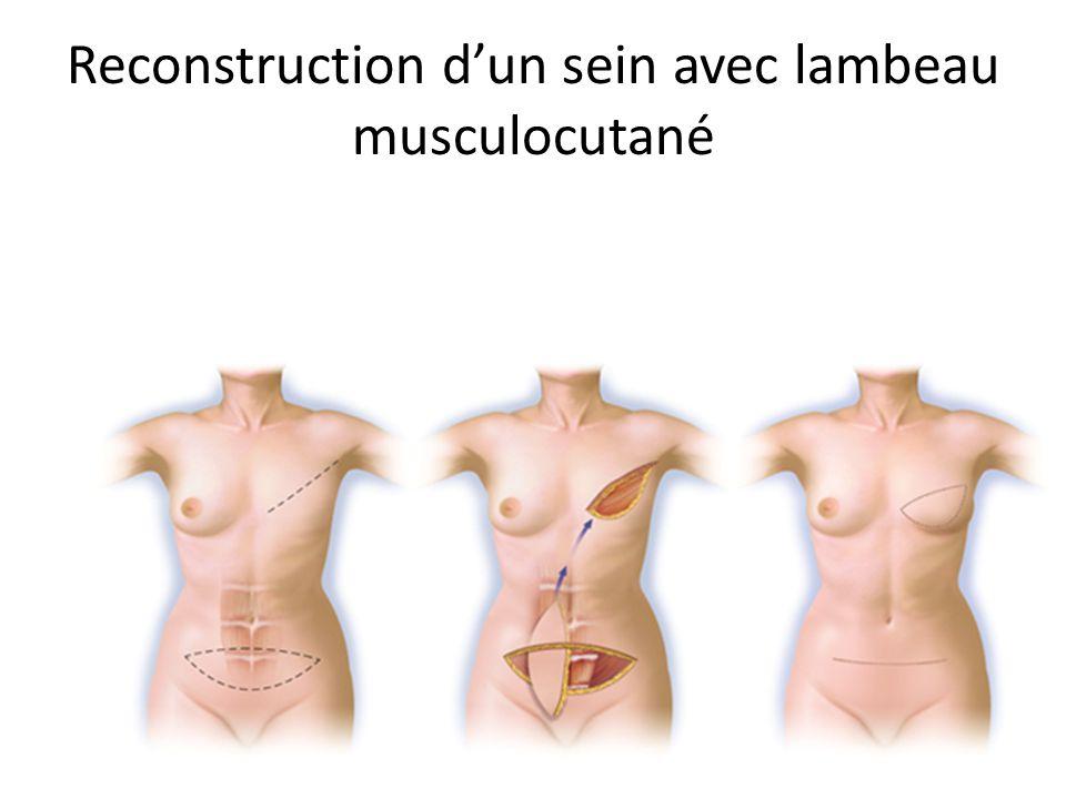Reconstruction d'un sein avec lambeau musculocutané