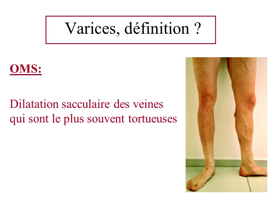 Varices, définition OMS: