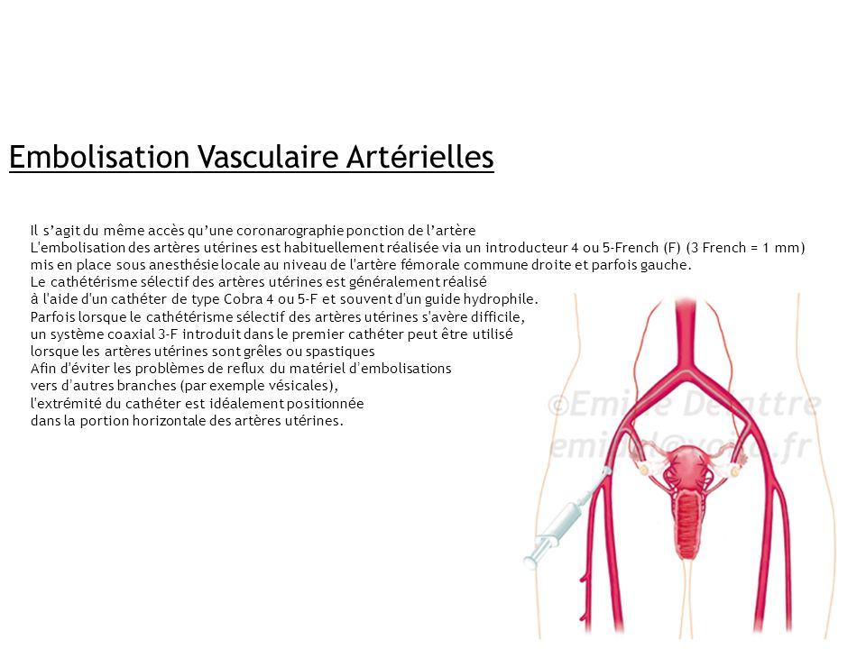 Embolisation Vasculaire Artérielles