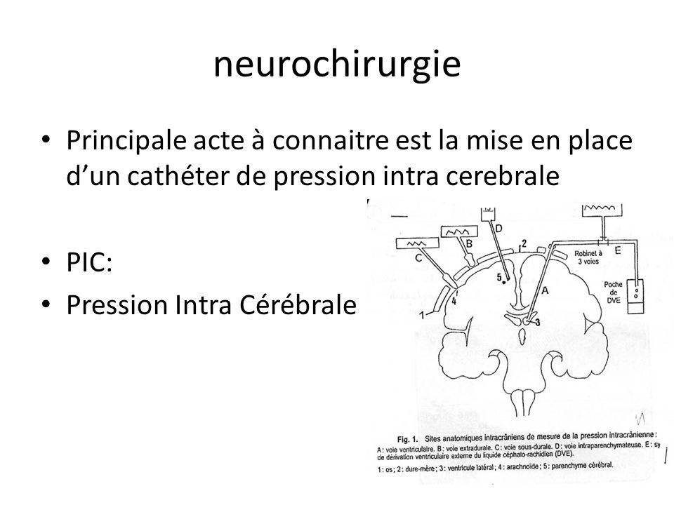 neurochirurgie Principale acte à connaitre est la mise en place d'un cathéter de pression intra cerebrale.
