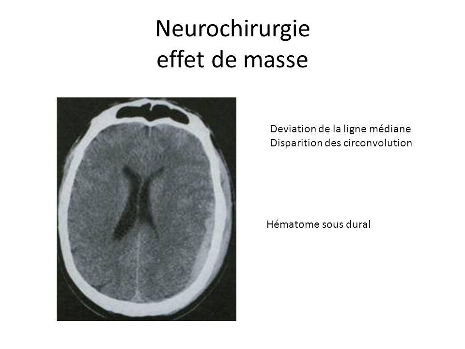 Neurochirurgie effet de masse