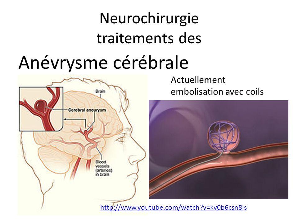 Neurochirurgie traitements des