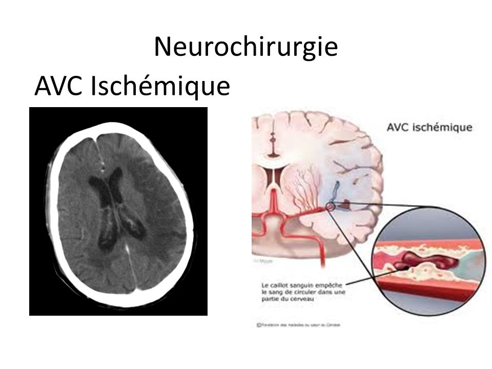Neurochirurgie AVC Ischémique