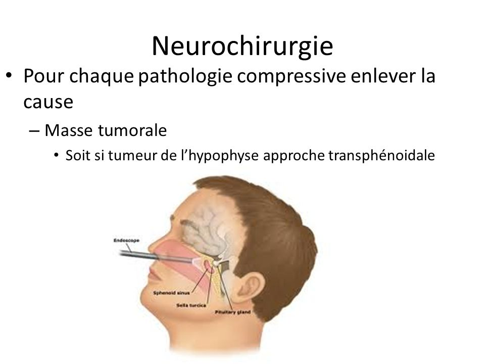 Neurochirurgie Pour chaque pathologie compressive enlever la cause
