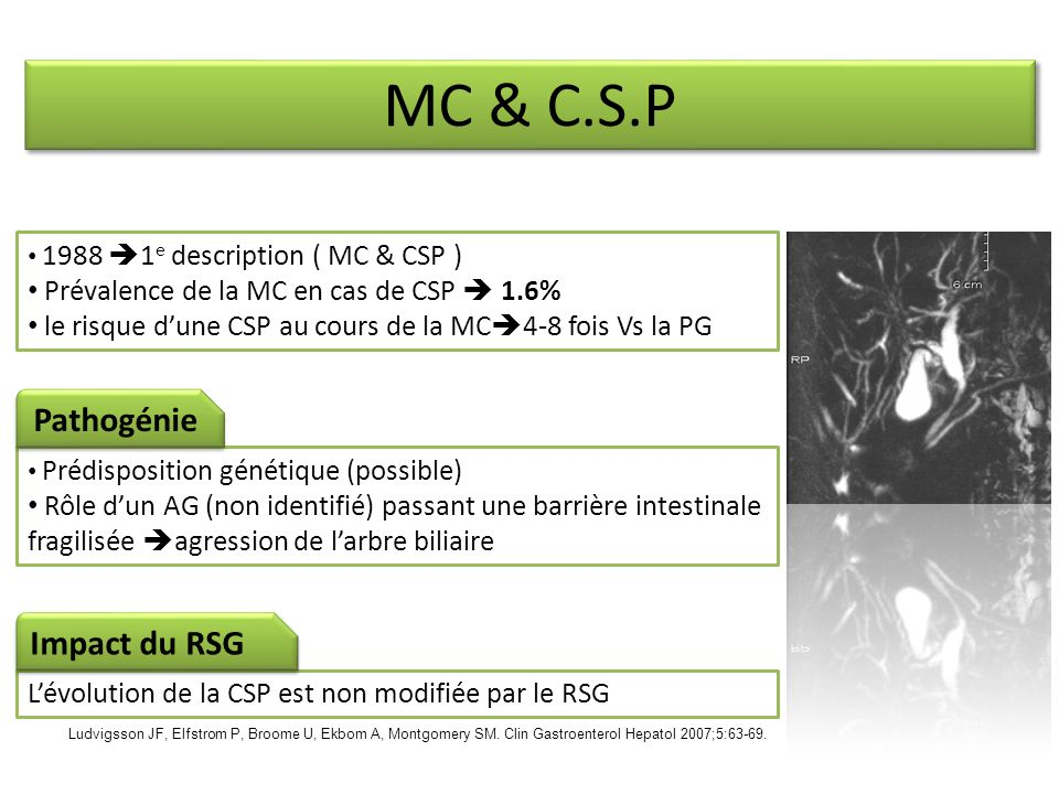 MC & C.S.P Pathogénie Impact du RSG