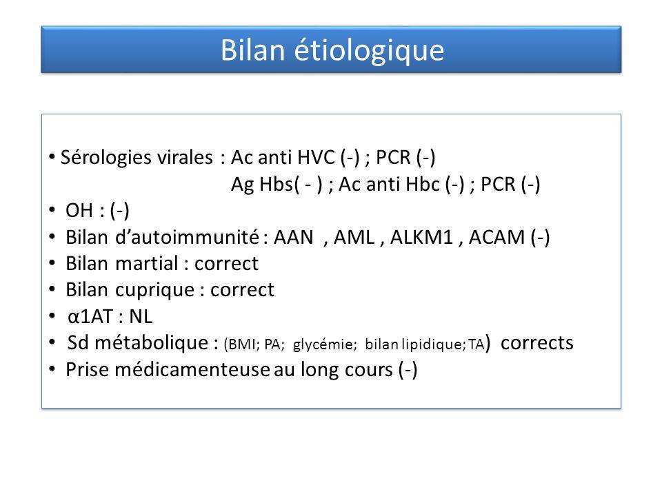 Bilan étiologique Sérologies virales : Ac anti HVC (-) ; PCR (-)
