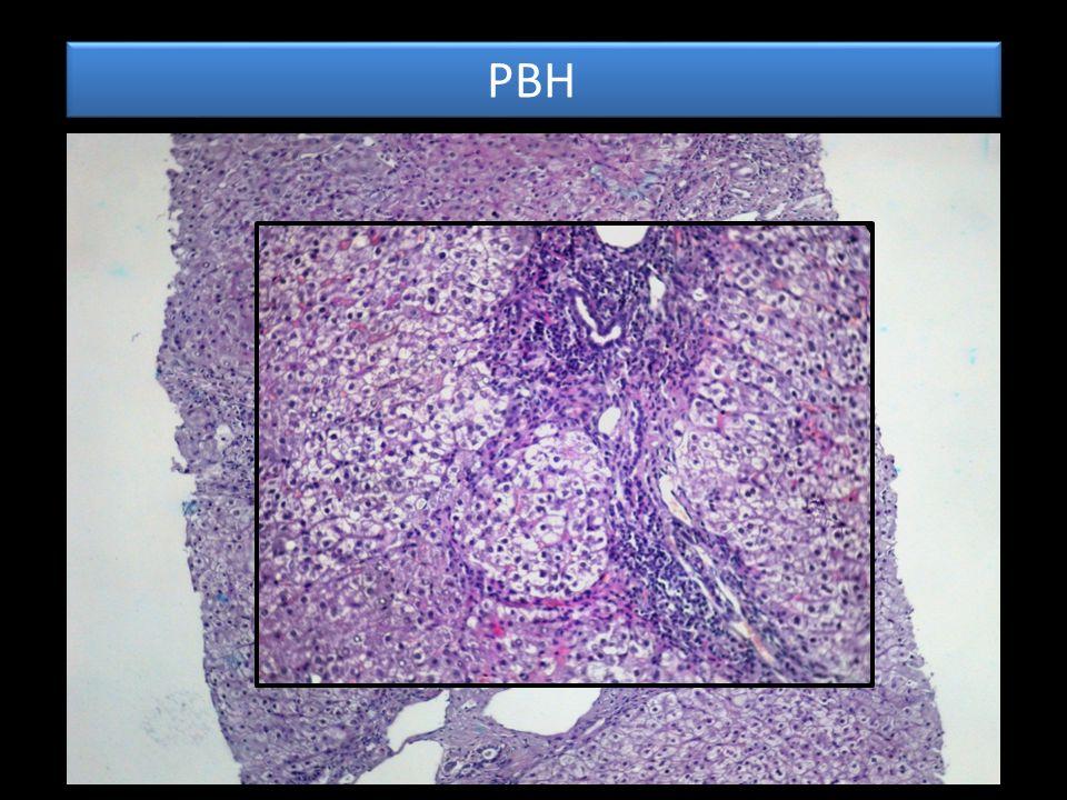 PBH Nodule VP Fibrose Mutilante delimitant des nodules