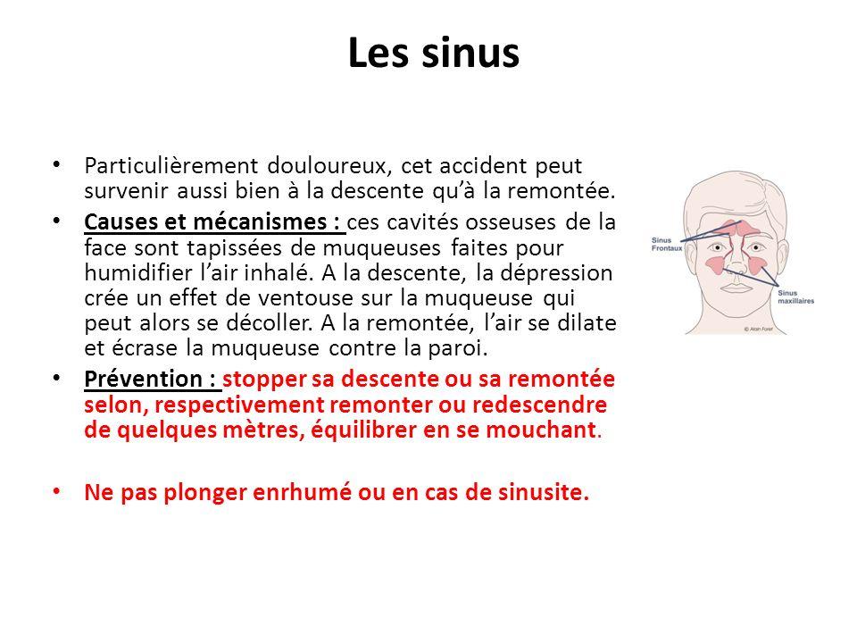 Les sinus Particulièrement douloureux, cet accident peut survenir aussi bien à la descente qu'à la remontée.