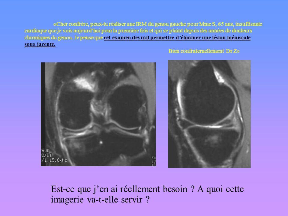 «Cher confrère, peux-tu réaliser une IRM du genou gauche pour Mme S, 65 ans, insuffisante cardiaque que je vois aujourd'hui pour la première fois et qui se plaint depuis des années de douleurs chroniques du genou. Je pense que cet examen devrait permettre d'éliminer une lésion méniscale sous-jacente. Bien confraternellement Dr Z»