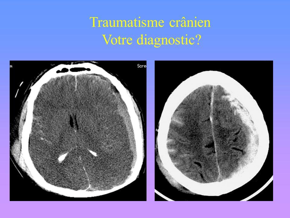 Traumatisme crânien Votre diagnostic