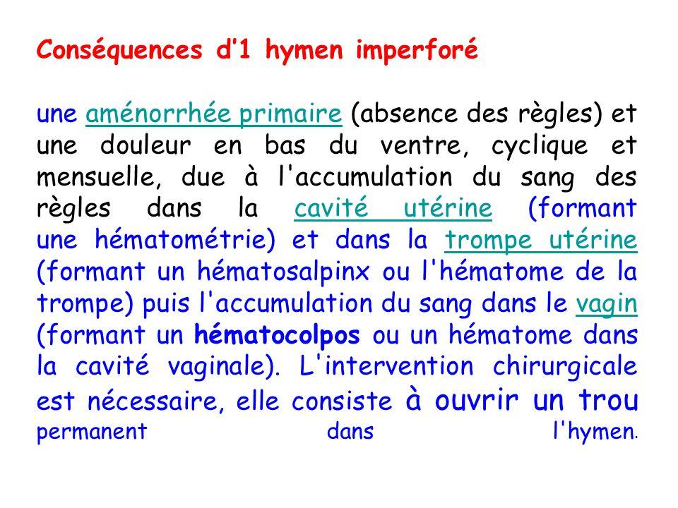 Conséquences d'1 hymen imperforé