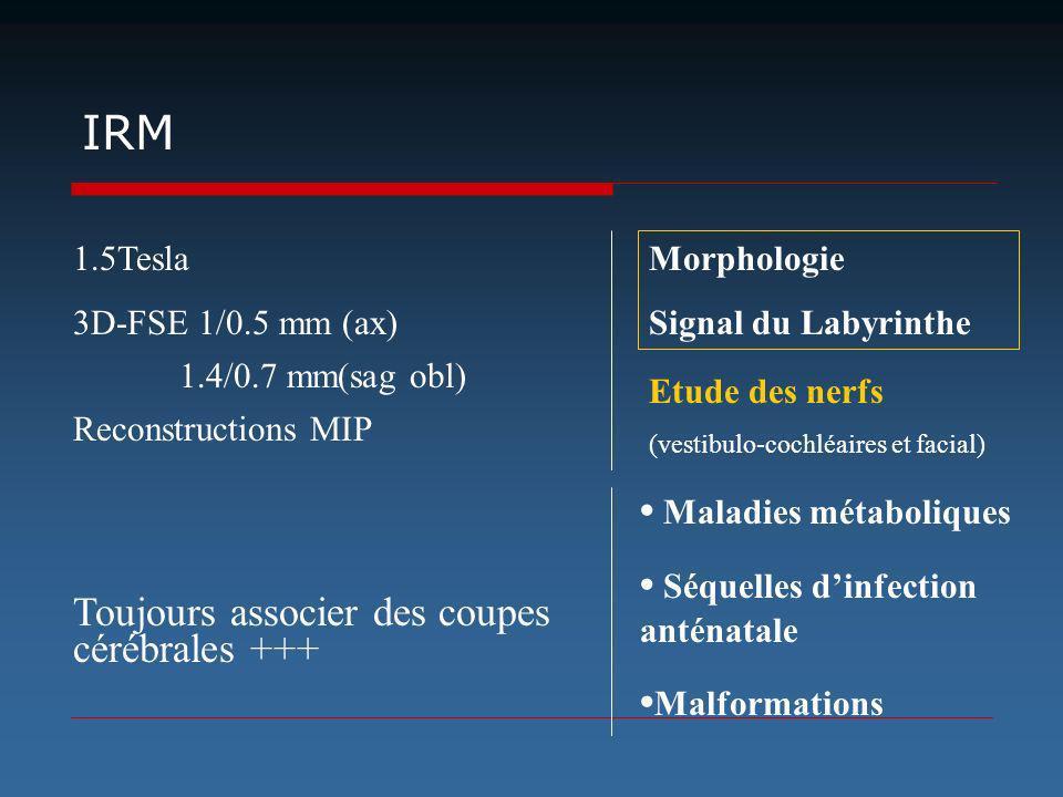 IRM Toujours associer des coupes cérébrales +++