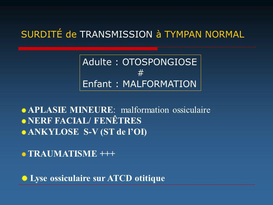 SURDITÉ de TRANSMISSION à TYMPAN NORMAL