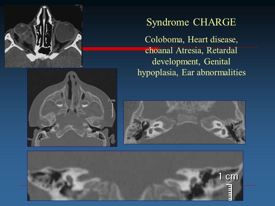 Syndrome CHARGE Coloboma, Heart disease, choanal Atresia, Retardal development, Genital hypoplasia, Ear abnormalities.