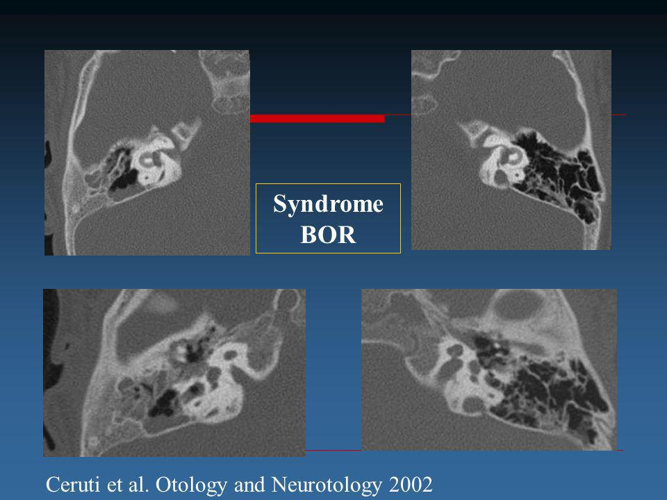Syndrome BOR Ceruti et al. Otology and Neurotology 2002