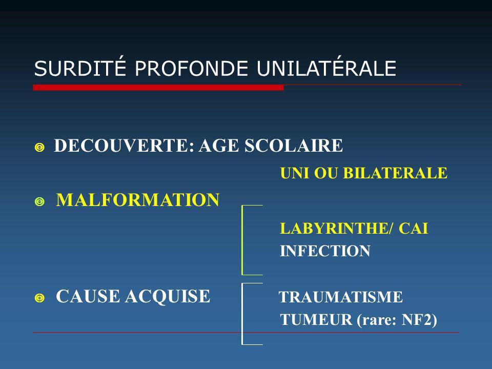UNI OU BILATERALE LABYRINTHE/ CAI SURDITÉ PROFONDE UNILATÉRALE