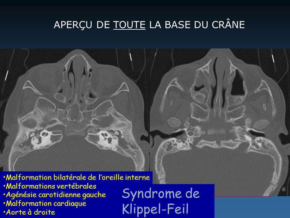Syndrome de Klippel-Feil