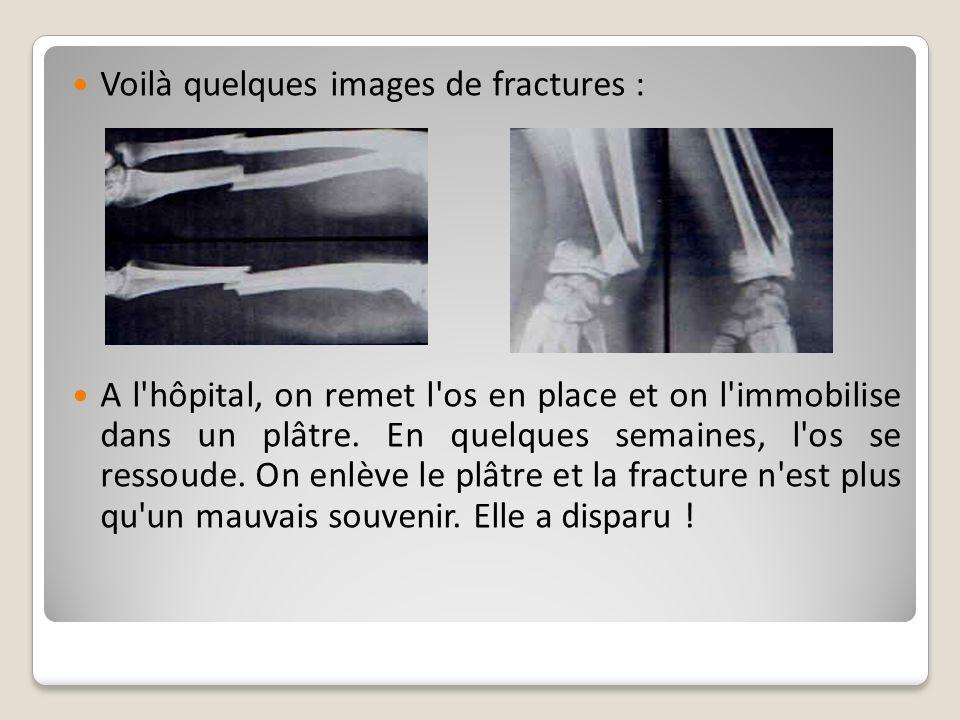 Voilà quelques images de fractures :