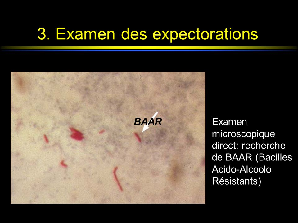 3. Examen des expectorations