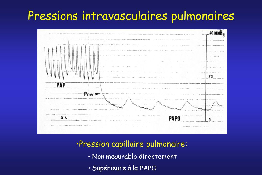 Pressions intravasculaires pulmonaires