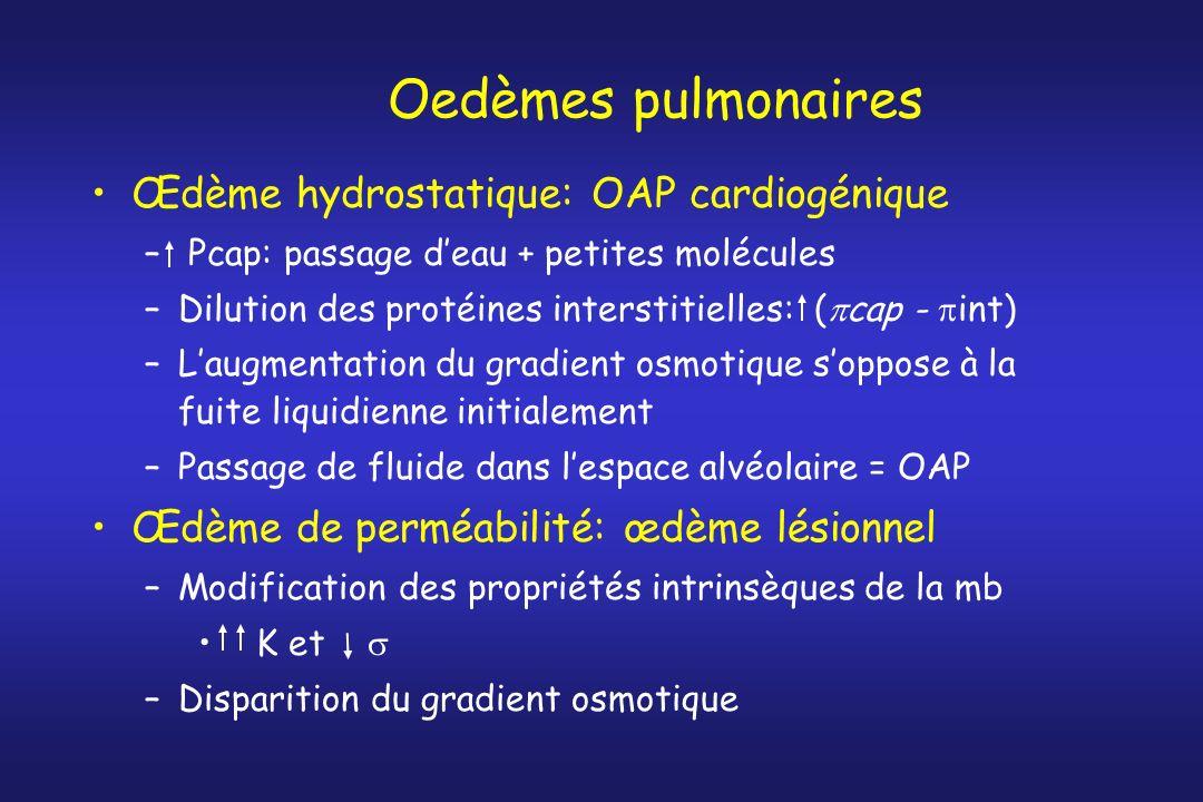 Oedèmes pulmonaires Œdème hydrostatique: OAP cardiogénique