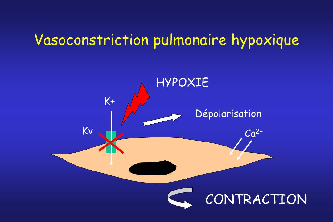 Vasoconstriction pulmonaire hypoxique