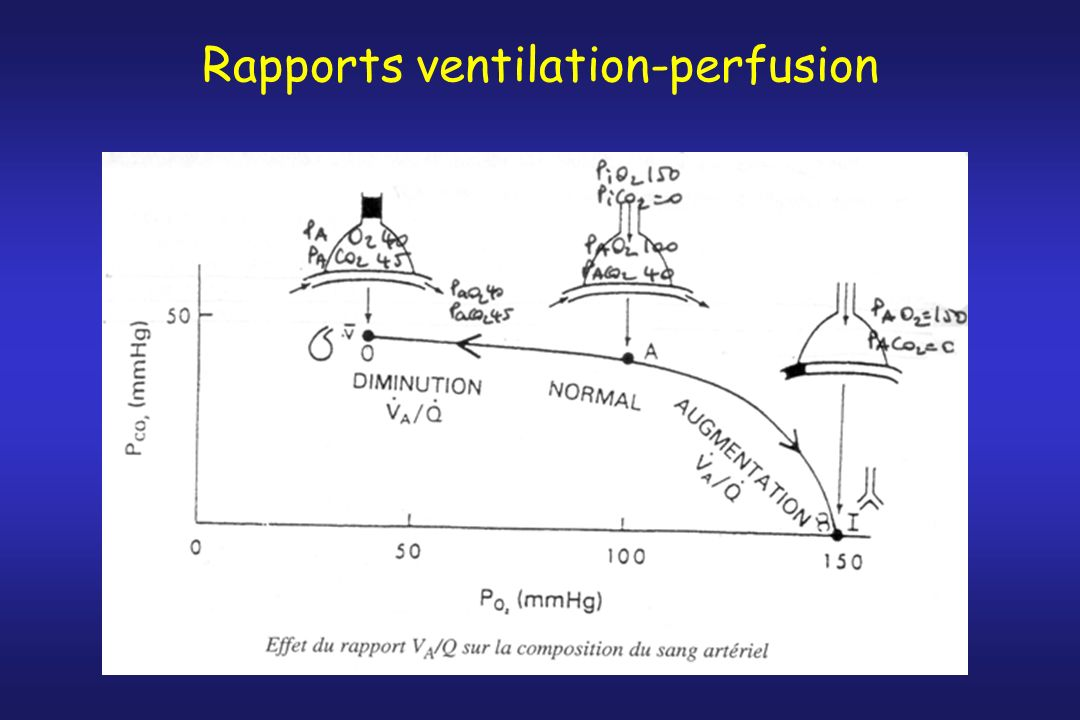 Rapports ventilation-perfusion