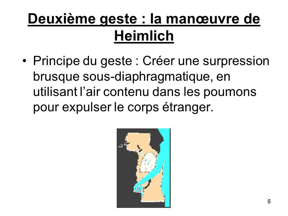 Deuxième geste : la manœuvre de Heimlich