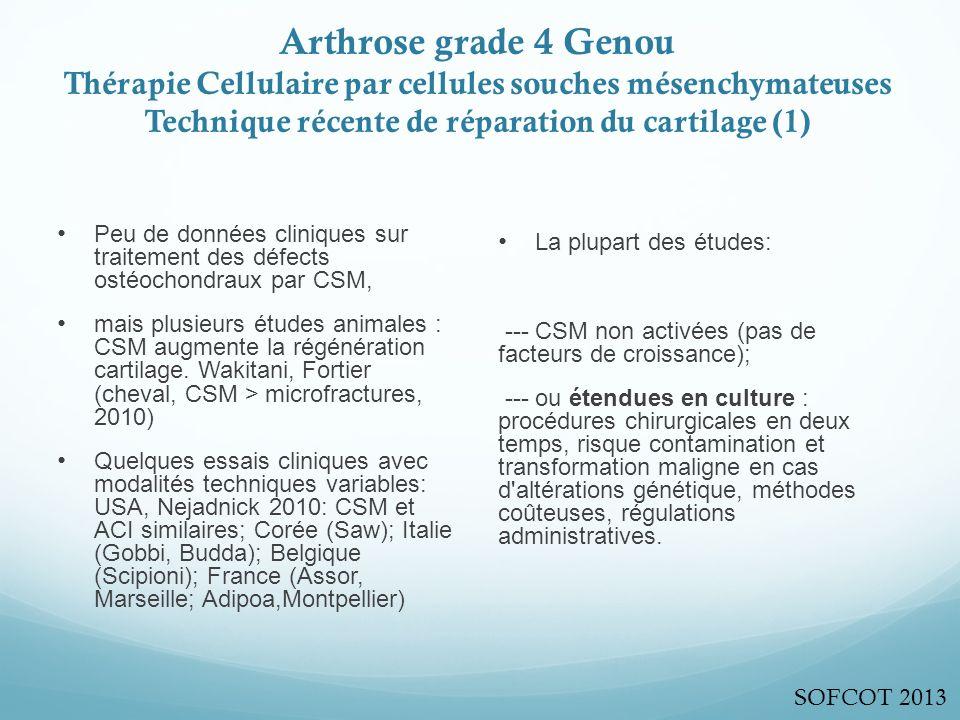 Arthrose grade 4 Genou Thérapie Cellulaire par cellules souches mésenchymateuses Technique récente de réparation du cartilage (1)