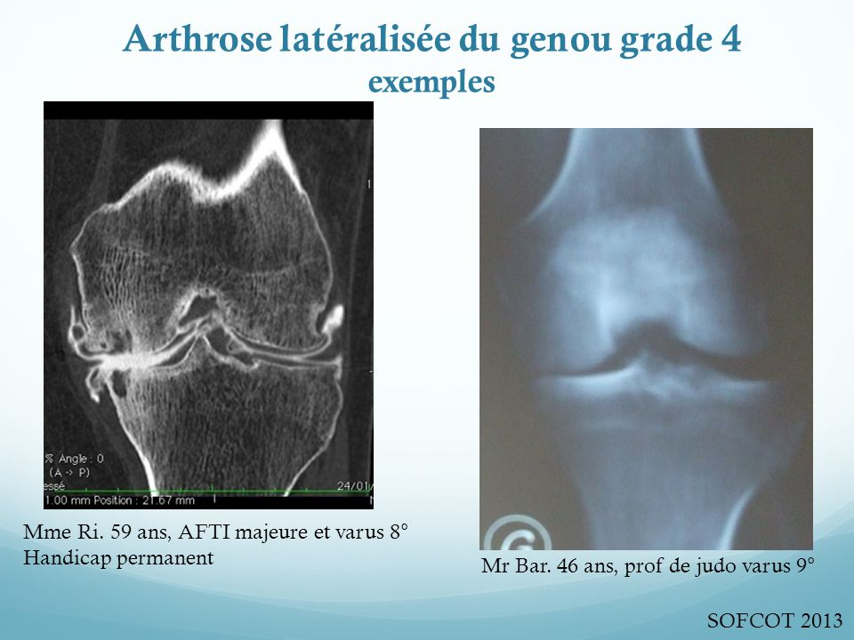 Arthrose latéralisée du genou grade 4 exemples