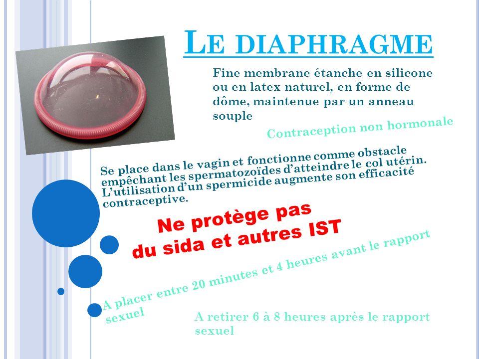 Le diaphragme Ne protège pas du sida et autres IST